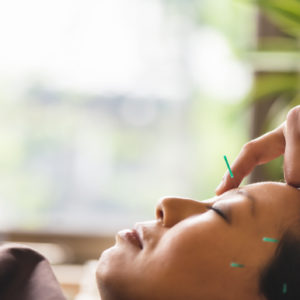 .Young woman, Japanese ethnicity, at the acupuncture treatment. Hand of acupuncturists inserting needles in her head. She lies at bright window. Close up.